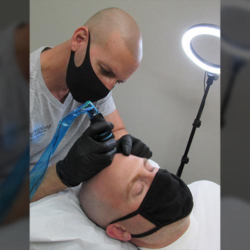 Mark Performing Scalp Micropigmentation Procedure