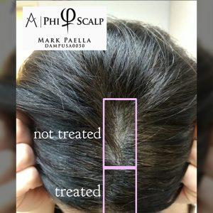 womens scalp micropigmentation treatment