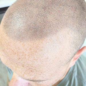 Soft Hairline