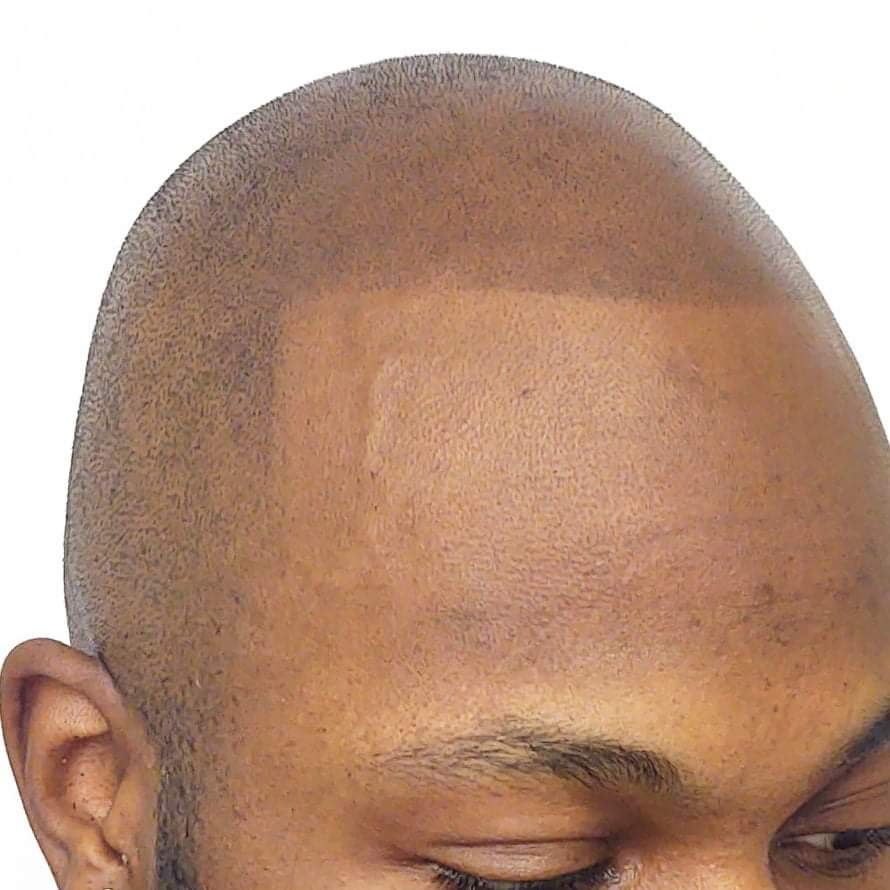 Strong Hairline